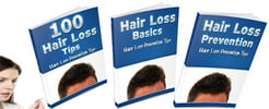 Thumbnail Hair Loss Problems Which You do not KONW...